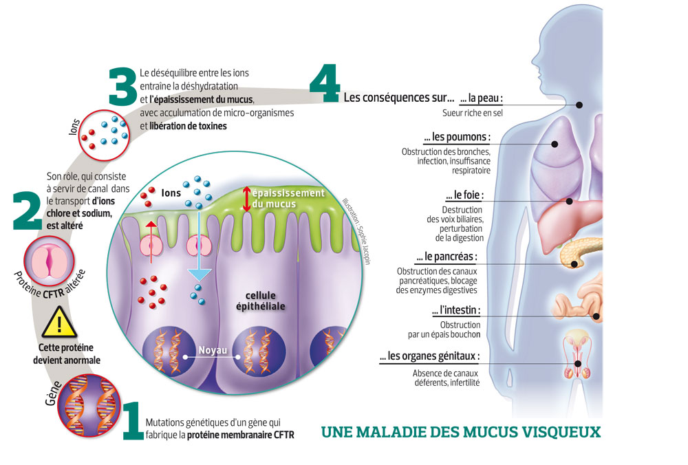 Comprendre la mucoviscidose